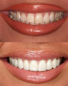Veneers-before-and-after1